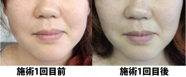 小顔矯正 施術1回目の前後の比較写真