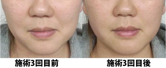 小顔矯正 施術3回目の前後の比較写真