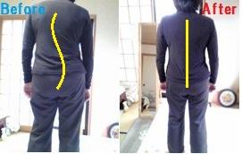背骨の歪みの施術前・施術後