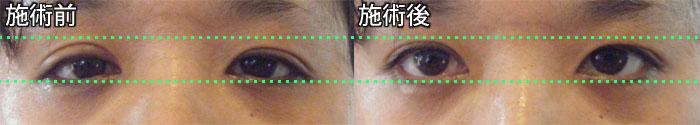 小顔矯正施術前・施術後の比較写真